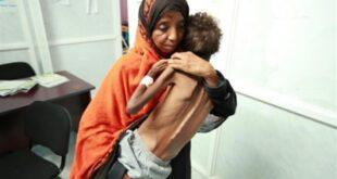 الأمم المتحدة: الجوع ينتظر نصف سكان اليمن العام المقبل